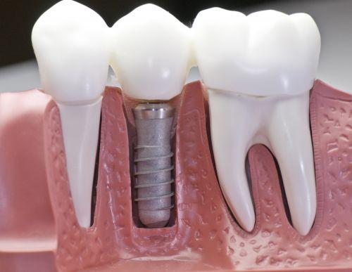 Как вставляется зубной имплант